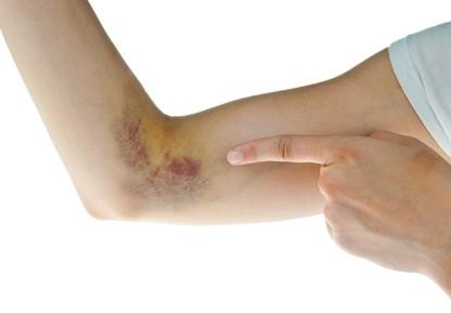 Bluterguss am Arm mit Heilpflanzen schnell abheilen