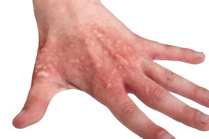 Hautverbrennung Heilkraut